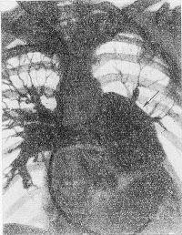 Рис. 6. Ангиопульмонограмма при аневризме легочного ствола (указана стрелкой).