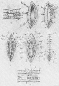 Рис. 5. Схематическое изображение парамедианной (левосторонней) лапаротомии: а — линия разреза брюшной стенки на поперечном сечении (1 — кожа и подкожная клетчатка, 2 — передний листок влагалища прямой мышцы, 3 —прямая мышца отодвигается латерально — обозначено пунктиром, 4 — задний листок влагалища прямой мышцы, 5 — париетальная брюшина); б — рассечение переднего листка влагалища (2) прямой мышцы живота (3); в — отведение прямой мышцы живота (3) латерально, задний листок влагалища прямой мышцы с париетальной брюшиной (5) захвачен пинцетом; г, дне — последовательные этапы варианта закрытия парамедианного разреза со съемными швами; г — наложен шов (6) на париетальную брюшину и задний листок влагалища прямой мышцы, накладываются съемные «удерживающие» швы (7), захватывающие края кожи и передний листок влагалища прямой мышцы; д — нити «удерживающих» швов (7) проведены, но не завязаны; накладываются швы на переднюю стенку влагалища прямой мышцы (8); e — завязываются съемные швы (7), завязаны швы передней стенки влагалища прямой мышцы (8), завязаны узловые кожные швы (9); ж — закрытие парамедианного разреза на поперечном сечении брюшной стенки (в — шов на брюшину и задний листок влагалища прямой мышцы, 7 — съемные «удерживающие» швы на кожу и передний листок влагалища прямой мышцы; 8 — шов на передний листок влагалища прямой мышцы; 9 — узловые кожные швы).