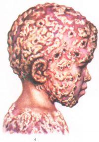 Рис. 4. Хронический генерализованный (гранулематозный) Кандидоз - на коже головы и туловища ребенка шелушащиеся инфильтрированные пятна и бугорки с роговыми отложениями.