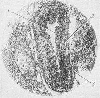 Рис. 4. Микропрепарат грудного протока: 1 — внутренняя оболочка; 2—средняя оболочка; 3 — наружная оболочка.