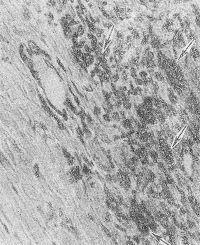 Рис. 4. Микропрепарат миокарда: выражена Макрофагальная реакция по периферии инфаркта после 3—5 суток (стрелками указаны крупные макрофагальные клетки); окраска гематоксилин-эозином; X 150.