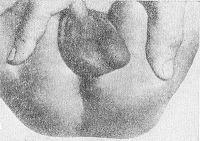 Рис. 8. Подкожная форма парапроктита у ребенка первого года жизни (слева от заднего прохода виден инфильтрат).