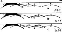 Рис. 2. Схемы иммуноэлектрофореграмм групп системы G с: каждая из групп системы Gc-имеет специфическое расположение и форму дуги преципитации с соответствующими антигенами (обозначены цифрами) на Иммуноэлектрофорезамме; 1 — альбумин; 2 — α-гликопротеин; 3 — Gc 1; 4 — α22М; 5—Gc 2; 6 — трансферрин; знаком плюс обозначен анод; знаком минус — катод; кружочками — места нанесения сывороток.