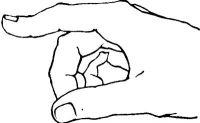 Рис. 7. Схематическое изображение двойной контрактуры указательного пальца правой кисти (сгибание в проксимальном меж-фаланговом суставе и разгибание — в дистальном) при повреждении сухожилия разгибателя пальца с сохранением боковых тяжей.