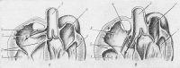 Рис. 15. Схематическое изображение анатомических изменений при прорыве аневризмы синусов Вальсальвы: а — прорыв аневризмы в правое предсердие; б — прорыв аневризмы в правый желудочек (стрелками обозначено направление кровотока при прорыве аневризмы); 1 — правый желудочек, 2 — трехстворчатый клапан, 3 — правое предсердие, 4 — аневризма синуса Вальсальвы, 5 — аорта, 6 — левое предсердие, 7 — левый желудочек.