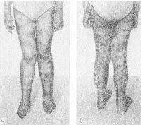 Рис. 3. Нижние конечности девочки 8 лет с узелковым периартериитом (кожный вариант): а — вид спереди; б — вид сзади; выраженная пятнистость кожи, обусловленная васкулитом.