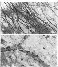 Рис. 2. Кровеносные сосуды в глубоком решетчатом коллагеново-эластическом слое брюшины