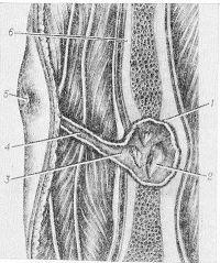 Рис. 12. Схематическое изображение остеомиелитического очага и гнойного свища при хроническом гематогенном остеомиелите: 1 — секвестральная капсула; 2 — секвестр в секвестральной коробке; 3 — клоака; 4 — свищевой ход в мышцах; 5 — наружное отверстие свища; 6 — кость.