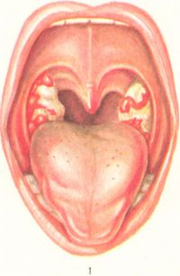 Рис. 1. Дифтерия зева — локализованная форма (на миндалинах серовато - белые налеты с гладкой поверхностью и четко очерченными краями)