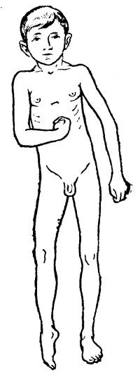 Рис. 2. Поза Вернике — Манна у ребенка с правосторонней гемиплегией: правая рука приведена к туловищу, согнута в локтевом, лучезапястном (кистевом) суставах, пальцы кисти согнуты, правые бедро и голень разогнуты, стопа в положении подошвенного сгибания повернута внутрь.