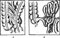 Рис. 7. Внутрибрюшные спайки: 1 — плоскостные; 2 — тяжевые.
