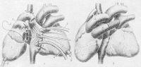 Рис. 2. Схематическое изображение некоторых этапов гетеротопической пересадки сердца: а — первый этап: 1 — сердце донора, 2 — сердце реципиента, 3 — анастомоз между левыми предсердиями сердец донора и реципиента, 4 — катетеры, введенные в верхнюю и нижнюю полые вены реципиента для искусственного кровообращения, 5 — восходящая часть аорты реципиента, 6 — катетеры, введенные в левые желудочки, 7 — аорта донора, 8 — легочный ствол донора; б — второй этап: 1 — сердце донора, 2 — сердце реципиента, 3 — легочный ствол донора анастомозирован с легочным стволом реципиента с помощью сосудистого протеза (заштрихован), 4 — аорта донора анастомозирована с аортой реципиента.