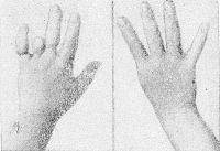 Рис. 5. Амниотические перетяжки III, IV и V пальцев с гипофалангией IV пальца левой кисти; адактилия I пальца правой кисти.