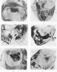Рис. 1. Макропрепараты сердца при ревматическом митральном пороке: а — митральный стеноз за счет склероза и сращения (указано стрелкой) створок клапана между собой, вид из предсердия; б — митральный стеноз типа диафрагмы (часть стенки левого желудочка и левого предсердия удалена), створки сращены в зоне комиссуральных вырезок (1), хорды (2) тонкие, интактные; в — митральный стеноз типа воронки, вид из желудочка, сужение отверстия (1) сформировано на уровне верхушек папиллярных мышц (2), сращение створок с хордами (3) на всем протяжении; г — сочетанный митральный порок, вид митрального клапана из предсердия, крупные петрификаты (указаны стрелками) митральных комиссур; д — митральная комиссуротомия, вид из предсердия, значительный разрыв комиссуры (указан стрелкой); e — разрыв комиссуры (1) в результате комиссуротомии шестилетней давности, выраженный гиалиноз и обызвествление (2) клапана (вид из предсердия).
