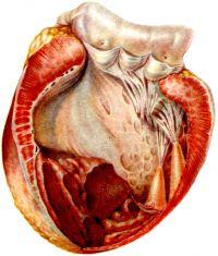 2. Аневризма передней стенки левого желудочка, верхушки и части задней стенки. Массивные пристеночные тромбы, выполняющие полость аневризмы