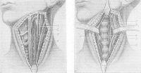 Рис. 26. Передний оперативный доступ к шейным позвонкам по Розанову: а — этап операции до рассечения превертебральной фасции, б — этап операции после рассечения превертебральной фасции; 1 — блуждающий нерв, 2 — внутренняя яремная вена, 3 — общая сонная артерия, 4 — лопаточно-подъязычная мышца, 5 — грудино-ключично-сосцевидная мышца, 6 — симпатический ствол, 7 — передняя продольная связка.