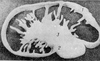 Рис. 1 . Поверхностный паховый лимфатический узел (пластическая реконструкция): 1 — капсула; 2 — ворота узла; 3 — соединительнотканное утолщение в области ворот; 4 — трабекулы.