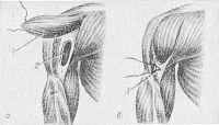 Рис. 19. Схематическое изображение мышечной пластики остеомиелитической полости плечевой кости: а — отсепарован мышечный лоскут (1) и введен в полость (2); б — мышечный лоскут укреплен швом (3).
