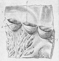 Рис. 2. Схематическое изображение полулунных заслонок клапанов легочного ствола (передняя стенка правого желудочка и начало легочного ствола разрезаны по линии между правым и левым полулунными клапанами и развернуты): 1 — стенка легочного ствола; 2 — луночка полулунной заслонки; 3 — левая полулунная заслонка; 4 — узелок полулунной заслонки.
