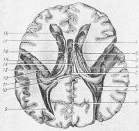 Рис. 3. Горизонтальный срез головного мозга через центральную часть и передние рога боковых желудочков после удаления верхней части височных долей и вскрытия нижних рогов боковых желудочков: 1 — полость прозрачной перегородки; 2 — конечная полоска; 3 — прикрепленная пластинка; 4—свод; 5—задняя спайка; 6 — коллатеральный треугольник; 7 — птичья шпора; 8 — шпорная борозда; 9 — задний рог бокового желудочка; 10 — валик мозолистого тела; 11 — гиппокамп; 12 — нижний рог бокового желудочка; 13—центральная часть бокового желудочка; 14 — третий желудочек; 15 — хвост хвостатого ядра; 16 — межжелудочковое отверстие; 17 — головка хвостатого ядра; 18 — передний рог бокового желудочка.