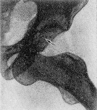 Рис. 12. Рентгенограмма левого тазобедренного сустава при передненижнем вывихе бедра: вертлужная впадина (указана стрелкой) пуста, головка бедренной кости смещена вниз до уровня нижней ветви лобковой кости.