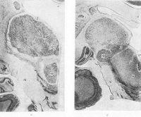 Фронтальные разрезы головного мозга человека на уровне средних (а) и задних (б) отделов таламуса: 1 — хвостатое ядро; 2 — переднедорсальное ядро; 3 — передневентральное ядро; 4 — мозолистое тело; 5 —латеральное переднее ядро; 6 — переднемедиальное ядро; 7 — медиодорсальное ядро; 8 — вентромедиальное ядро; 9 — подушка; 10 —латеральное заднее ядро; 11 —вентральное постеромедиальное ядро; 12 — срединный центр (Люиса); 13 — парафасцикулярное ядро; 14 — красное ядро; 15 — черная субстанция; 16 — ножки мозга; 17 — латеральное коленчатое тело; 18 — медиальное коленчатое тело; 19 — переднее двухолмие.