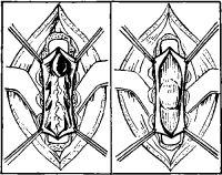 Рис. 1. Арахноидальные кисты спинного мозга (на левом рисунке — вверху, на правом — в центре).