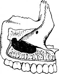 Рис. 3. Взаимоотношение дна верхнечелюстной пазухи (черного цвета) н корней зубов верхней челюсти.