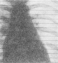 Рис. 6. Рентгенокимограмма сердца больной системной склеродермией: в нижней части контура левых отделов сердца — отсутствие рентгенокимографических зубцов, свидетельствующее о резком снижении амплитуды пульсации (зона адинамии).