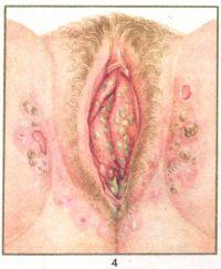 Рис. 4. Вульвит при сахарном диабете (на фоне воспаления — гнойные очаги), вторичные изменения кожи в окружности вульвы.