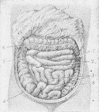 Рис. 5. Схематическое изображение положения петель тонкой кишки при поднятом большом сальнике: 1 — большой сальник; 2 — тощая кишка; 3 — подвздошная кишка; 4 — слепая кишка; 5 — восходящая ободочная кишка; 6 — поперечная ободочная кишка; 7 —нисходящая ободочная кишка; 8 — сигмовидная ободочная кишка.