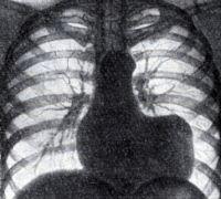 Рис. 4. Аневризма левого желудочка. Увеличение поперечника сердца влево. Прямоугольные очертания левого контура сердца (рентгенограмма)
