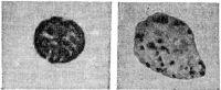Прямая реакция дегрануляции базофилов при аллергии к пенициллину (слева — неизмененный базофил).