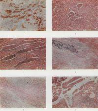 Рис. 1 — 6. Микропрепараты почек при пиелонефрите. Рис. 1. Серозный пиелонефрит: гиперемия микроциркуляторного русла, расширенные вены заполнены окрашенными в бурый цвет эритроцитами; окраска по Лепене; Х80. Рис. 2. Очаговый гнойный пиелонефрит: очаг гнойного воспаления (указан стрелкой); окраска гематоксилин-эозином; Х80. Рис. 3. Острый гнойный пиелонефрит: гнойные цилиндры в канальцах почек (указаны стрелками); окраска гематоксилин-эозином; X 80. Рис. 4. Острый гнойный пиелонефрит: колонии микробов (синего цвета) в просвете канальцев почек; окраска гематоксилин-эозином; X 80. Рис. 5. Острый гнойный паранефрит: лейкоцитарная инфильтрация паранефральной клетчатки (указана стрелкой); окраска гематоксилин-эозином; X 80. Рис. 6. Гнойный пиелонефрит: пласт слущенного эпителия лоханки (указан стрелкой); окраска гематоксилин-эозином; X 80.