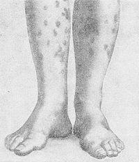 Рис. 1. Геморрагический лейкокластический микробид Мишера — Шторка. Эритематозно-геморрагические пятна.