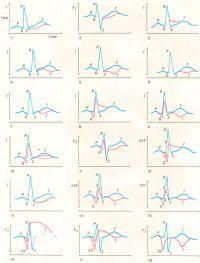 Рис. C. Изменения на электрокардиограммах при различных проявлениях ишемической болезни сердца (схема к таблице). Синяя кривая — нормальная электрокардиограмма; красные кривые — патологические изменения.