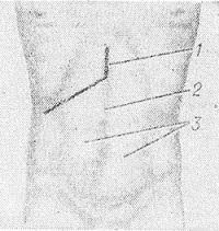 Рис. 7. Схема разреза кожи при подреберной (косой) лапаротомии с дополнительным вертикальным разрезом в верхнем углу раны: 1 — линия дополнительного разреза; 2 — белая линия; 3 — прямые мышцы.