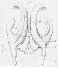 Рис. 2. Гипсовый слепок с желудочков головного мозга: 1 — передние рога боковых желудочков; 2 — третий желудочек; 3 — нижний рог правого бокового желудочка; 4 — водопровод мозга; 5 — четвертый желудочек; 6 — задний рог бокового желудочка; 7 — левый латеральный карман четвертого желудочка; 8 — коллатеральный треугольник левого бокового желудочка; 9 — эпифизарное углубление; 10 — центральная часть левого бокового желудочка.
