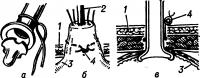Рис. 3. Схема гастростомии по Скобелкину: катетер Пеццера (а) после частичного срезывания головки (клюва) вводится в выведенный конус желудка (б) и после затягивания кисетного шва погружается в брюшную полость (в), нити от кисетного шва выведены наружу и фиксированы к передней брюшной стенке; 1 — брюшная стенка; 2 — катетер Пеццера; 3 — желудок; 4 — концы нитей от кисетного шва.