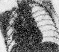 Рис. 16. Аортограмма при аневризме синуса Вальсальвы: контрастное вещество через катетер введено в восходящую аорту, видна полость аневризмы (указана стрелкой).