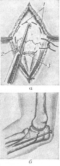 Рис. 19. Схематическое изображение остеосинтеза локтевого отростка: а — остеосинтез лавсановой нитью (1), фиксирующей круговым швом отломки, сближенные однозубым крючком (2); поперечный канал (3), просверленный в локтевой кости: б — остеосинтез длинным винтом, проведенным через локтевой отросток в костномозговой канал локтевой кости.