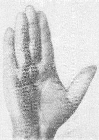 Рис. 1. Кисть человека при первой стадии контрактуры Дюпюитрена: появление узелков и тяжей на ладонной поверхности в области III—IV пястно-фаланговых суставов без контрактуры пальцев.