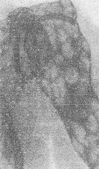 Рис. 7. Рентгенограмма области левого плечевого сустава при эхинококкозе костей (прямая проекция): в области эпифиза и диафиза левой плечевой кости и лопатки определяются множественные просветления неправильной формы с округлыми контурами, обусловленные наличием эхинококковых кист.