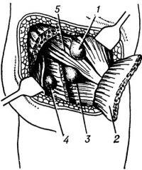 Рис. 25. Схема расположения седалищных грыж: 1 — грыжа, выходящая над грушевидной мышцей; 2 — большая ягодичная мышца; 3— грыжа, выходящая под грушевидной мышцей; 4 — грыжа, выходящая через малое седалищное отверстие; 5 — грушевидная мышца.
