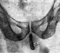 Рис. 3. Обзорная рентгенограмма лобковой области больного с инородным телом в мочеиспускательном канале — частью резинового катетера (тень катетера указана стрелкой).
