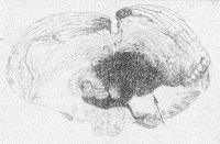 Рис. 8. Фронтальный срез мозжечка и продолговатого мозга с кровоизлиянием в мозжечок (гематома указана стрелкой).