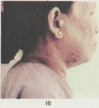 Рис. 16. Язва в подчелюстной области, развившаяся на месте чумного бубона (14-й день болезни).