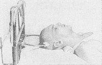Рис. 2. Больной с переломом шейного отдела позвоночника при скелетном вытяжении за бугры теменных костей.
