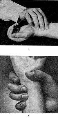 Рис. 1. Пальпация пульса на лучевой артерии: а — II, III и IV пальцами; б — III и IV пальцами с фиксацией предплечья I и II пальцами.