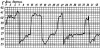 Рис. 3. Температурная кривая при возвратном тифе эпидемическом — вшином (нелеченый больной).